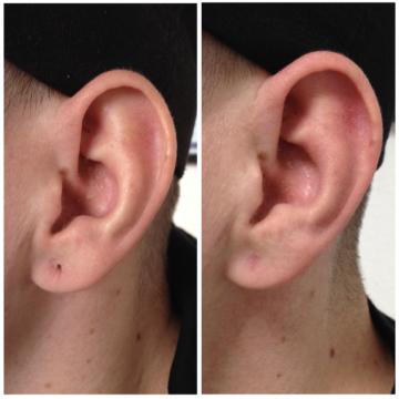 Ohrläppchen vorher mit gedehntem Ohrloch, nachher mit verschlossenem Ohrloch