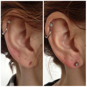 Ohrläppchen vorher mit gedehntem Ohrloch, nachher mit verschloessenem Ohrloch und neuem Ohrring