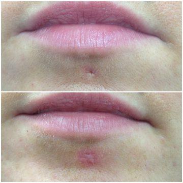 vorher: Lippen mit Piercingnarbe in der Unterlippe, nachher: Piercingnarbe leichte Rötung mit genähter Narbe