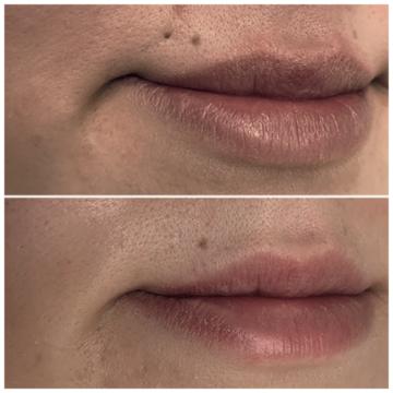 Lippe mit Piercingnarbe vor und nach der Piercingnarbenentfernung