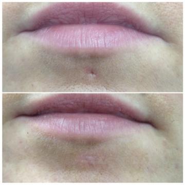 Unterlippenpiercing vor und nach Piercingnarbenentfernung